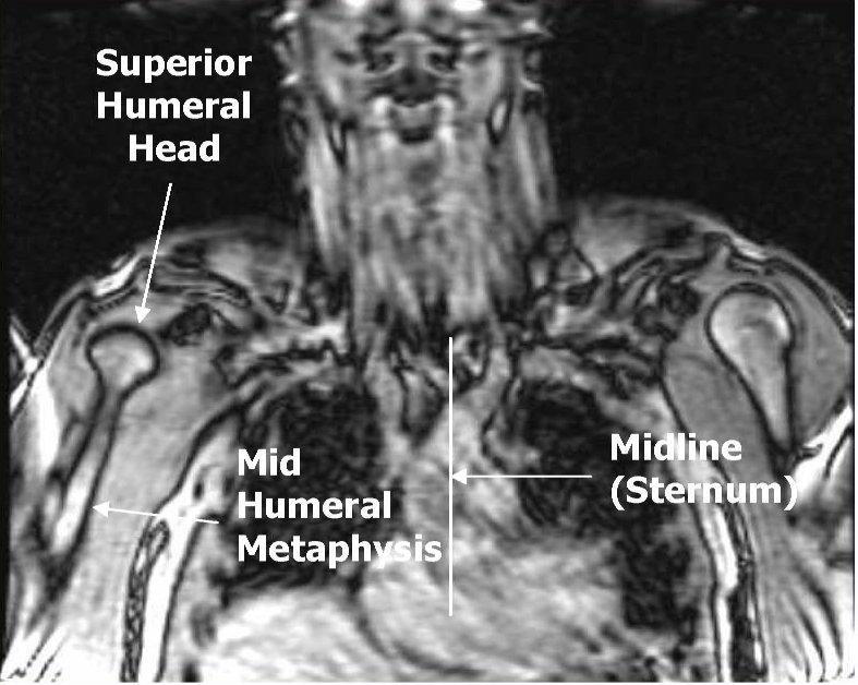 ArUn\'s MRI Protocols: PECTORALIS MUSCLE MRI & ANATOMY