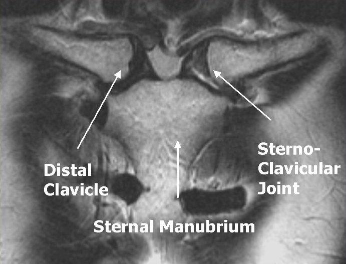 ArUn\'s MRI Protocols: STERNO CLAVICULAR JOINTS MRI PROTOCOL