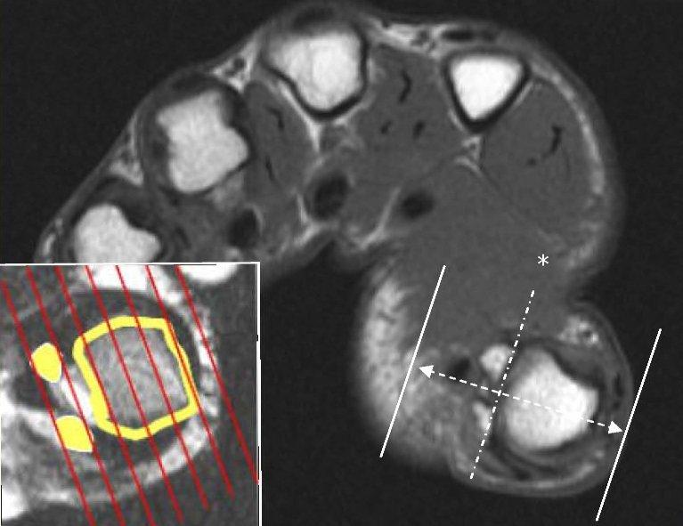 ArUn's MRI Protocols: Thumb MRI imaging planes